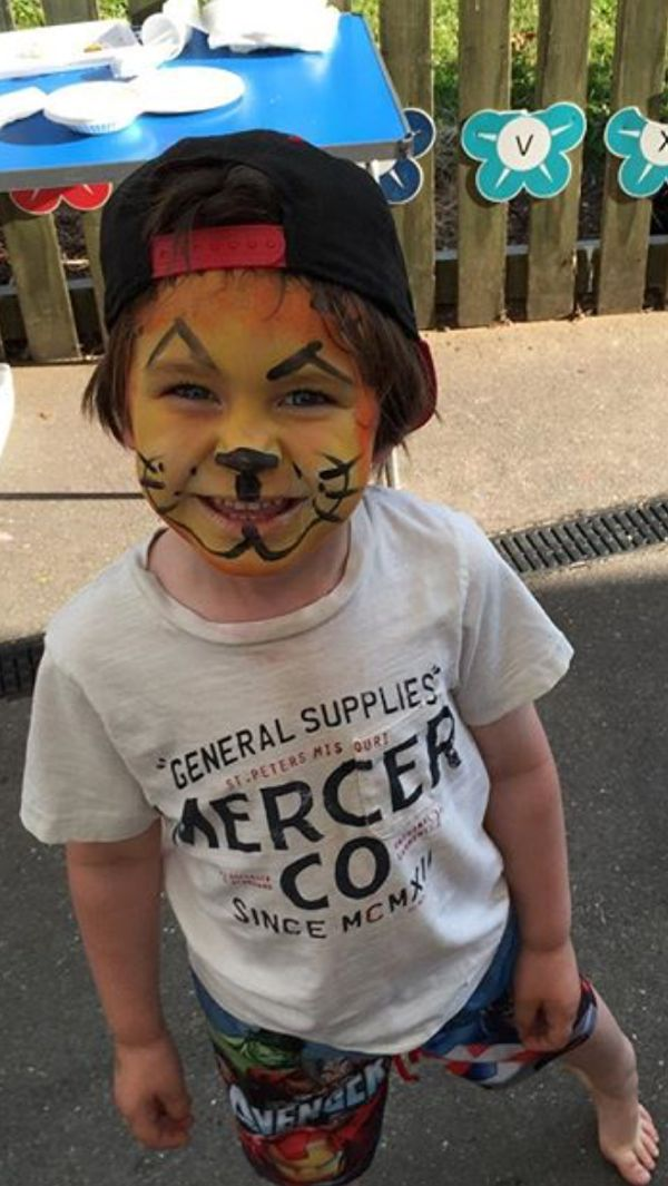 601ca1642172 Dealing with an allergic reaction to face paint this summer - Toby ...